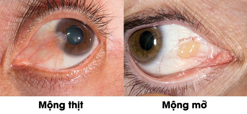 Mộng thịt mộng mỡ gây mất thẩm mỹ và có thể làm giảm thị lực